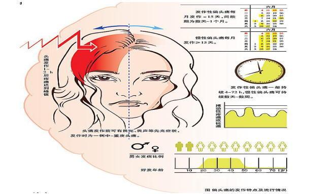 偏头痛的症状及治疗_偏头痛的症状图片,偏头痛图片大全_偏头痛_39疾病百科