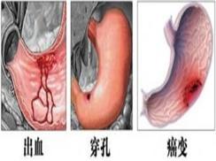 胃、十二指肠溃疡出血