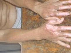 外阴烧伤、烫伤和化学损伤