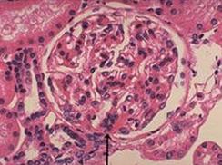 家族性出血性肾炎(Alport综合征)