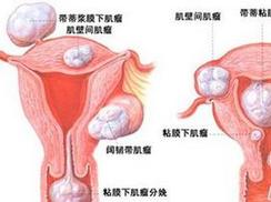 妊娠期尿路感染