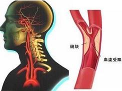 颈动脉硬化