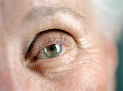 眼球运动障碍
