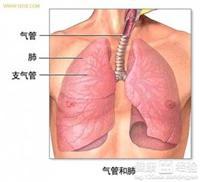 肺结核复发