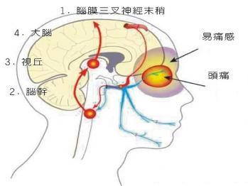 偏头痛的症状及治疗_偏头痛_偏头痛的症状,治疗,好评专家_疾病查询_39疾病百科