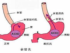 反流性食管炎