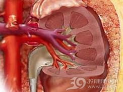 急性肾盂肾炎