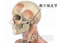 颞下颌关节脱位