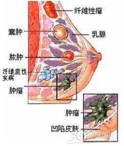 遗传性乳腺癌-卵巢癌综合征