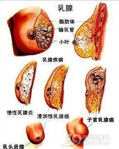 绝经期乳腺癌