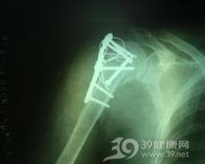 肱骨外科颈骨折