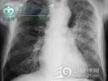 尿毒症肺炎
