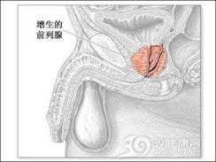 老年人前列腺增生症