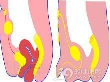 脐尿管囊肿