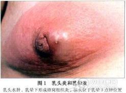 乳头炎和乳晕炎