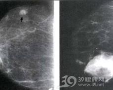 外伤性乳房血肿