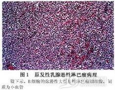 原发性乳腺恶性淋巴瘤