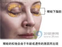 经皮肤入路法去眼袋