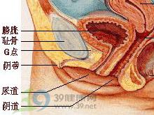 阴道紧缩术
