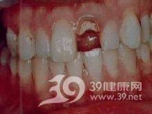 牙光固化修复