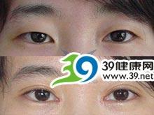 双眼皮_双眼皮价格,双眼皮医院