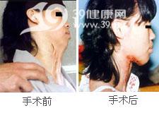 颈部瘢痕挛缩治疗