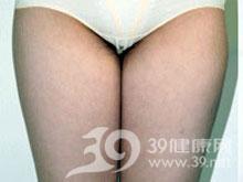 大腿环形吸脂