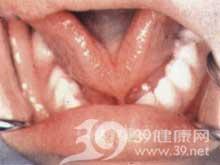 舌系带过短矫正