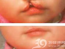 唇腭裂术前正畸治疗