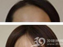 秃发手术修复