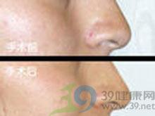 鼻尖缺损修复