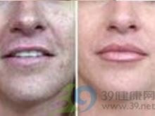 鼻小柱缺损修复