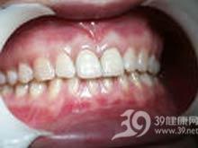 牙缺损金属烤瓷修复