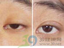 眼睑缺损修复