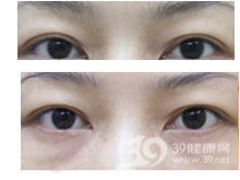 祛眼袋手术失败修复