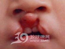 双侧唇裂修复