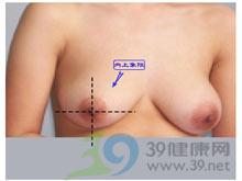 乳房囊肿切除