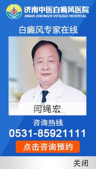 济南治疗白癜风好的医院