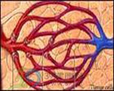 毛细血管扩张