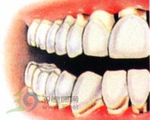 咽炎、舌炎、龈炎