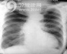 肺含水量增加