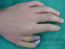 多指(趾)畸形