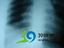 肺下叶周围呈节段性或大叶性模糊阴影