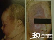 面部血管纤维瘤