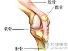 关节韧带松弛或肌张力低