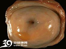 子宫颈扩张