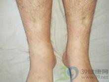 踝部凹陷性水肿