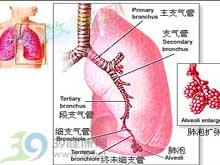 肺部或支气管周围可呈现纹理增粗及浸润现象