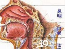 鼻咽腔狭窄