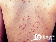 出血性丘疹